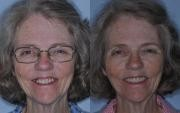 Dental Surgery Before and After Maryland