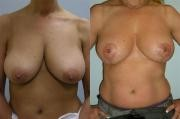 Breast Lift Maryland