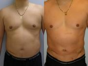 Liposuction before and After images Maryland