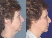 Neck Liposuction before and after MD