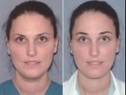 Brow Lift Surgery Before and After Maryland