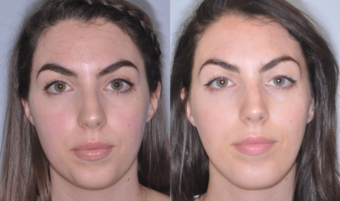 Chin Implant Surgery Before and After Maryland