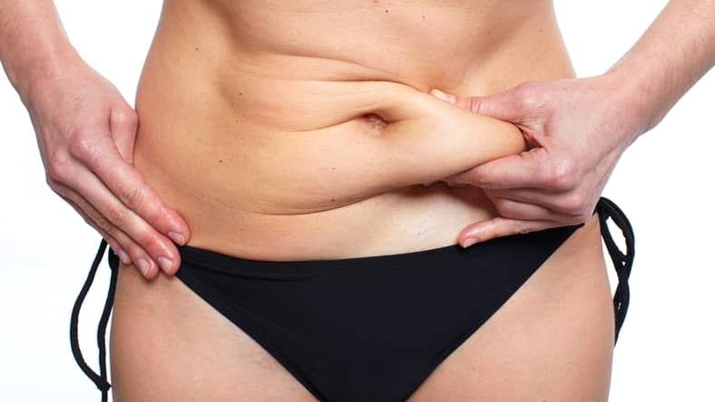 woman with fat to remove via liposuction